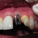 Implant Restoration (Before)