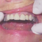 Porcelain Crowns (After)