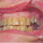 Porcelain Crowns (Before)